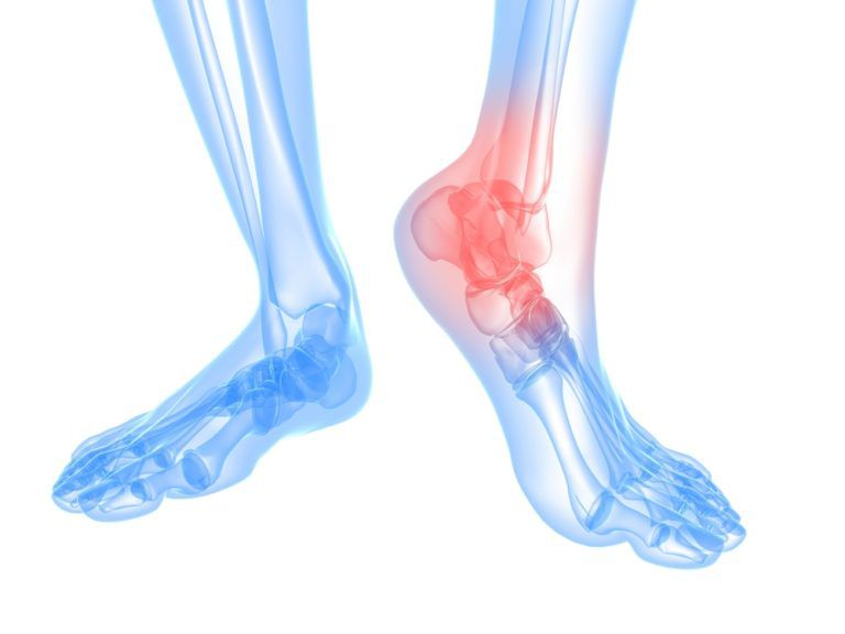 diagram of foot and ankle arthritis
